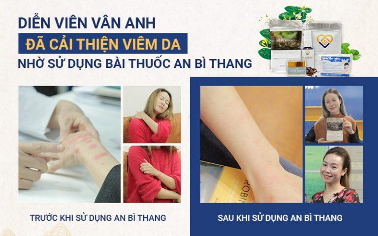 """Diễn viên """"Phía trước là bầu trời"""" Vân Anh cải thiện làn da tới 95% sau 1 liều trình điều trị duy nhất với An Bì Thang"""