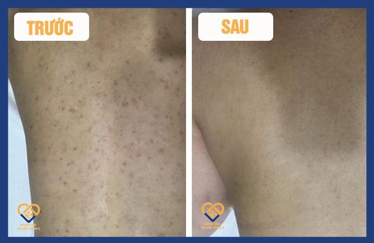 Khách hàng bị viêm nang lông ở lưng TRƯỚC - SAU điều trị bằng An Bì Thang