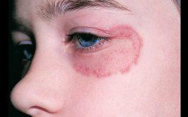 Bệnh hắc lào có nguy hiểm không phụ thuộc vào nhiều yếu tố