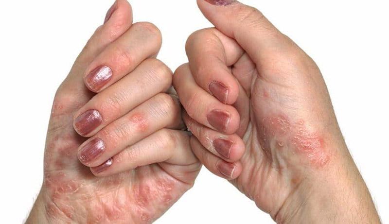 Bệnh tổ đỉa có lây không - Đây là bệnh không lây từ người sang người