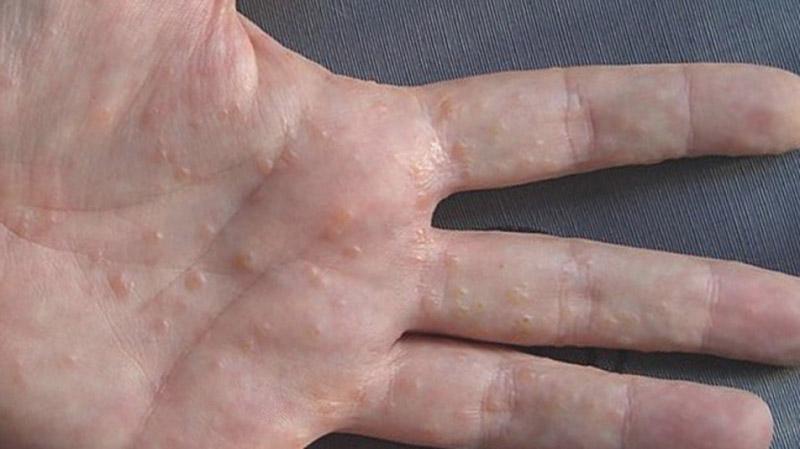 Hình ảnh bệnh tổ đỉa ở tay