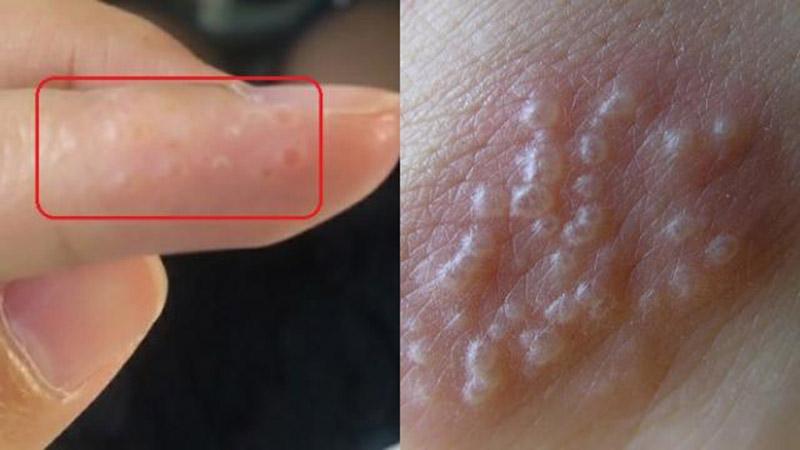 Biểu hiện của bệnh là trên da xuất hiện các mụn nước li ti