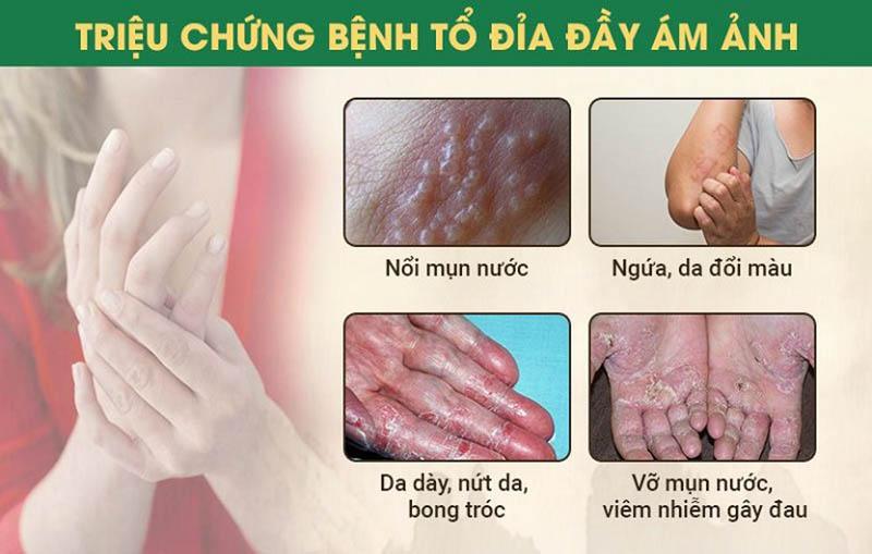 Triệu chứng bệnh tổ đỉa thường gặp