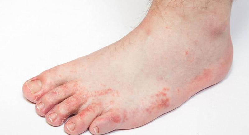 Triệu chứng bệnh có thể tự lặn sau 3 -4 tuần nhưng dễ tái phát