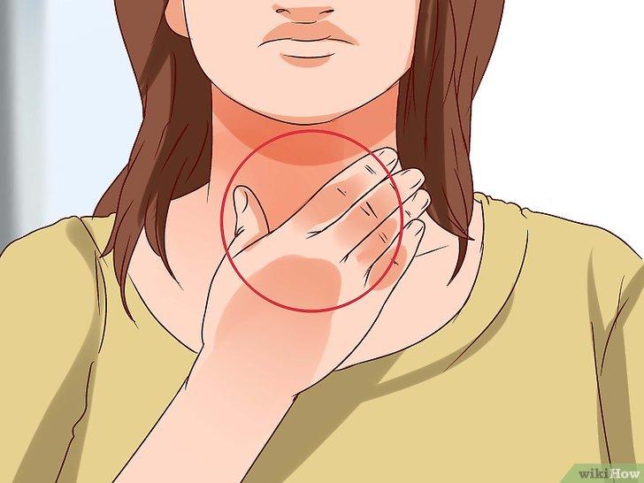 Viêm thanh quản mãn tính thường tái đi tái lại nhiều lần và ảnh hưởng tới cuộc sống người bệnh