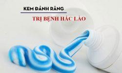 Chữa hắc lào bằng kem đanh răng giúp sát khuẩn, giảm ngứa