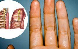 Tuyến mồ hôi phát triển mạnh cũng là một nguyên nhân gây bệnh chính