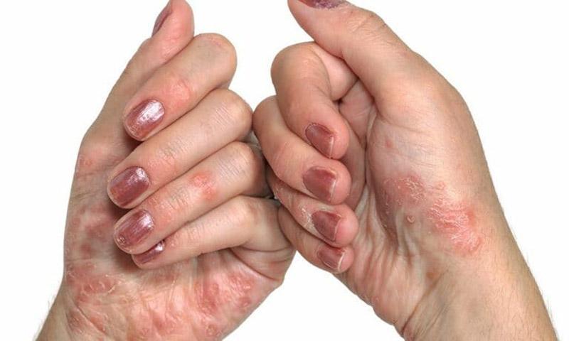 Bệnh tổ đỉa có chữa được không?