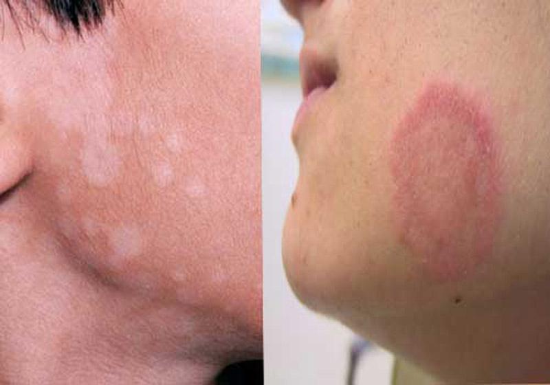 Triệu chứng bệnh hắc lào thường bị nhầm lẫn với các bệnh ngoài da khác