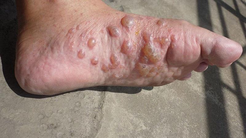 Tổ đỉa là tình trạng bệnh đặc biệt của chàm eczema