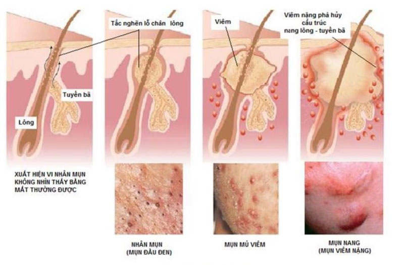 Nguyên nhân viêm nang lông do vi khuẩn gây ra