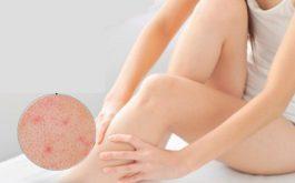 Triệu chứng viêm nang lông