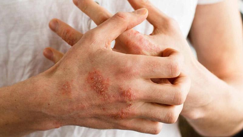 Người bị viêm nang lông tuyệt đối không được gãi trên da