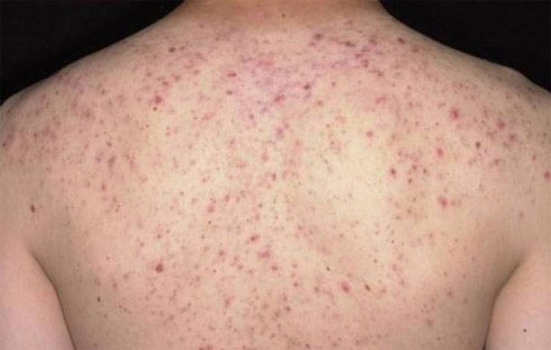 Viêm nang lông là tình trạng viêm nhiễm da phổ biến