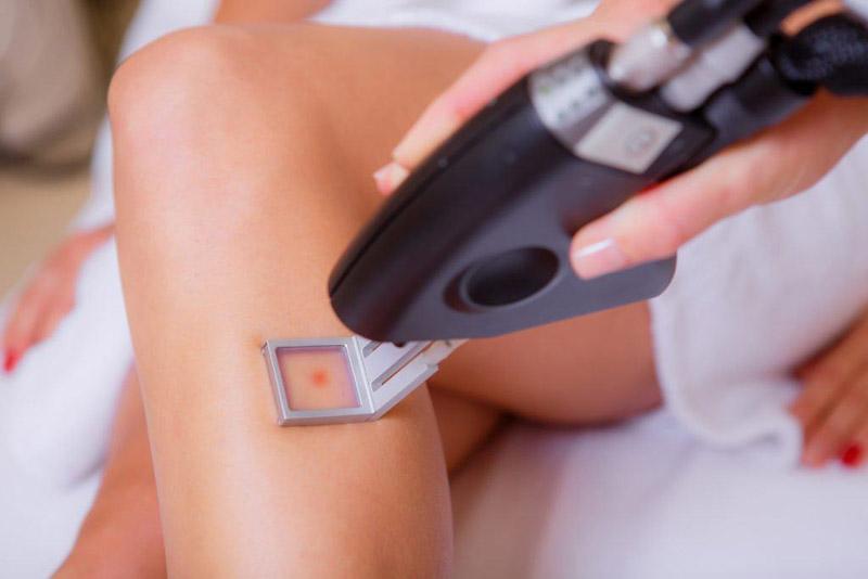 Điều trị bằng công nghệ laser hiện đại