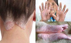 Chăm sóc da đúng cách để ngăn ngừa bệnh tái phát