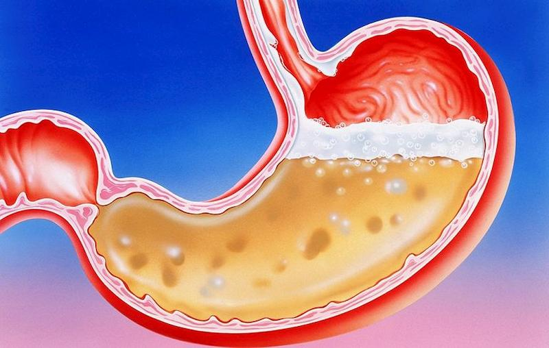 Axit dạ dày là chất dịch đóng vai trò quan trọng và không thể thiếu trong quá trình tiêu hóa thức ăn