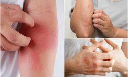 Người bệnh không nên cào gãi khi bị viêm da tiếp xúc