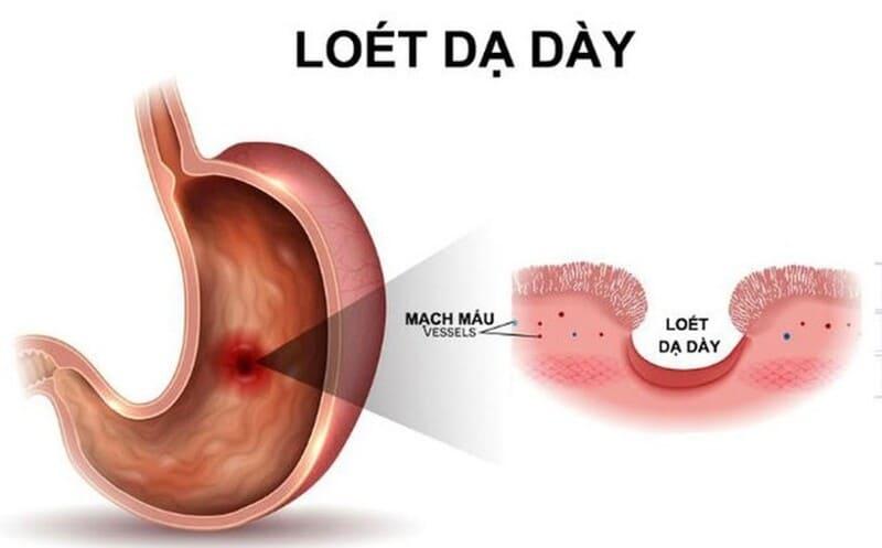 Loét dạ dày kèm theo nhiều biểu hiện khiến người bệnh mất sức, khó chịu