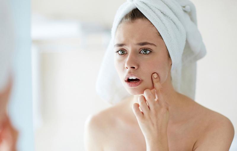 Chăm sóc da không đúng cách cũng khiến mụn ẩn nổi nhiều hơn
