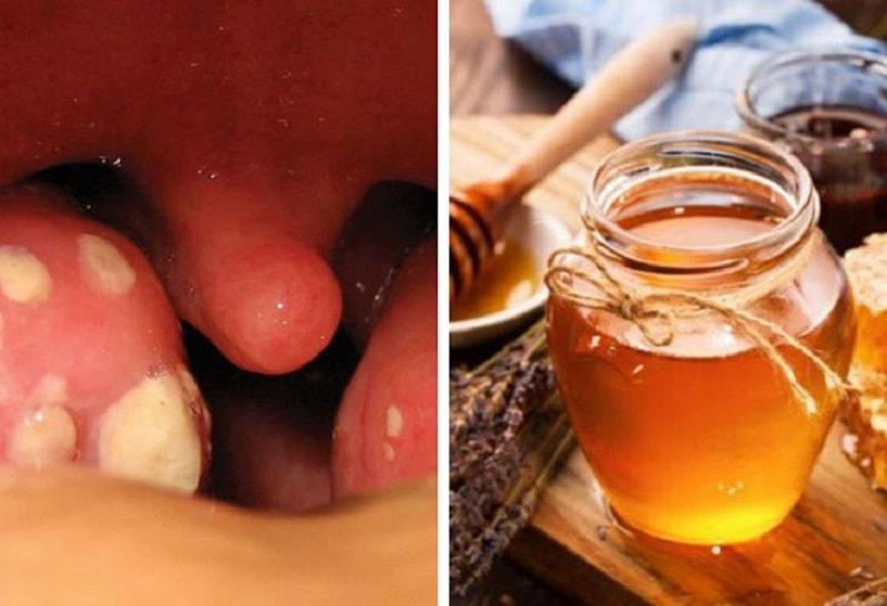 Mật ong có tác dụng giảm đau, kháng viêm vô cùng hiệu quả