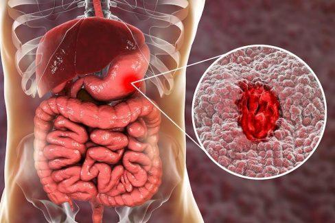 Xuất huyết dạ dày là tình trạng niêm mạc bị tổn thương và chảy máu