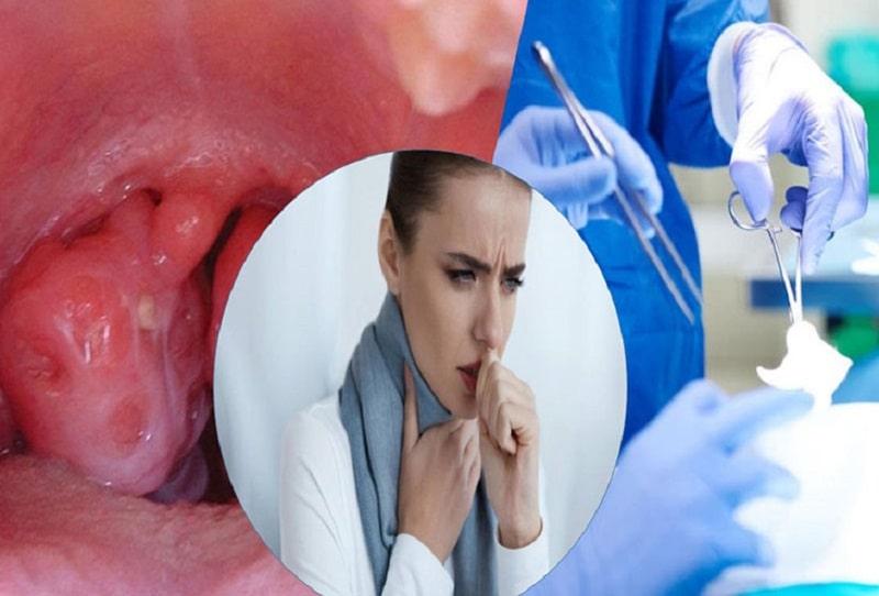 Phương pháp cắt amidan hiện nay hạn chế tối đa những biến chứng có thể gặp