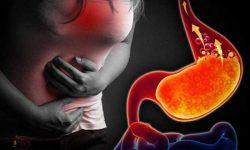 Đau dạ dày trong đêm - Nguyên nhân và các phương pháp xử lý