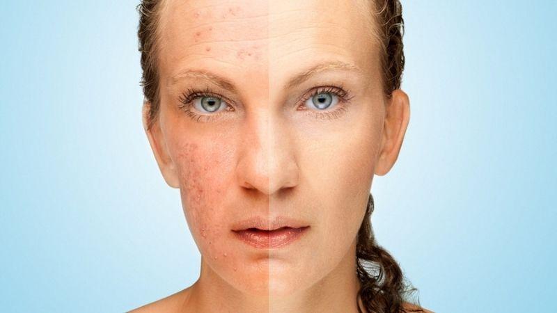Tìm hiểu về chứng bệnh dị ứng da mặt