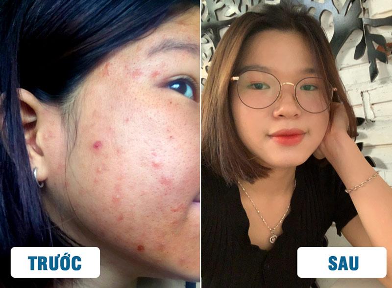 Hình ảnh khách hàng trước và sau khi trị mụn với BSP Hoàn Nguyên