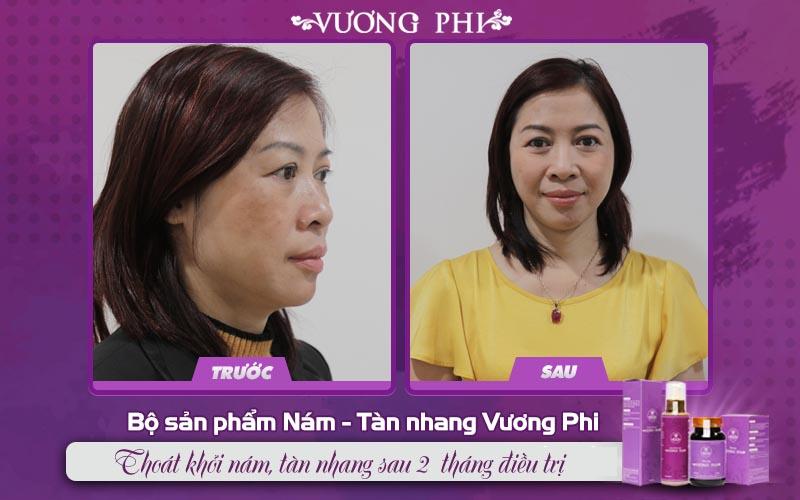 Cô Kim Hoa (giáo viên, 50 tuổi) ghi nhận tình trạng nám thuyên giảm 80% sau 2 tháng điều trị với Bộ sản phẩm Vương Phi