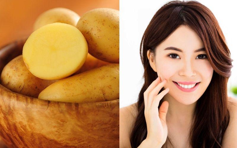 Khoai tây có công dụng trị thâm, kháng viêm cho da mụn hiệu quả