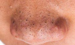 Mụn đầu đen nổi bật với đầu nhân mụn màu đen do bị oxy hóa