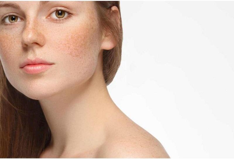 Nám da là tình trạng phổ biến xuất hiện nhiều ở phụ nữ