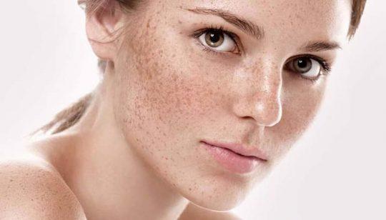 [Nám da mặt] Phân loại, nguyên nhân và cách trị hiệu quả toàn diện