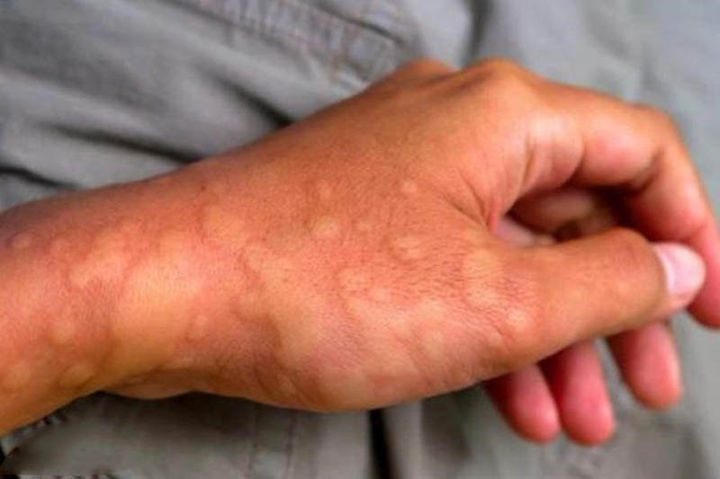 Tìm hiểu về bệnh nổi mề đay