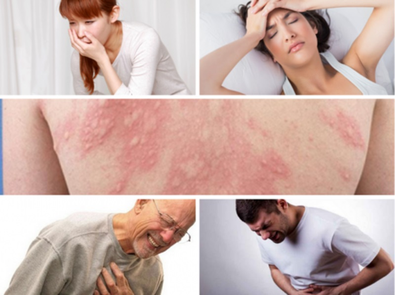 Bệnh có thể gây sốc phản vệ dẫn đến tử vong