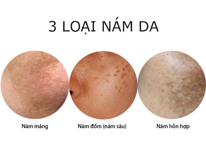 Nám da và một số loại thường gặp