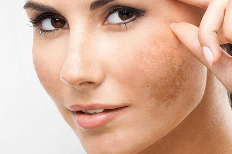 Rối loạn nội tiết tố là một trong những nguyên nhân gây nám da
