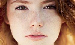 Tàn nhang thường xuất hiện nhiều ở trên da mặt