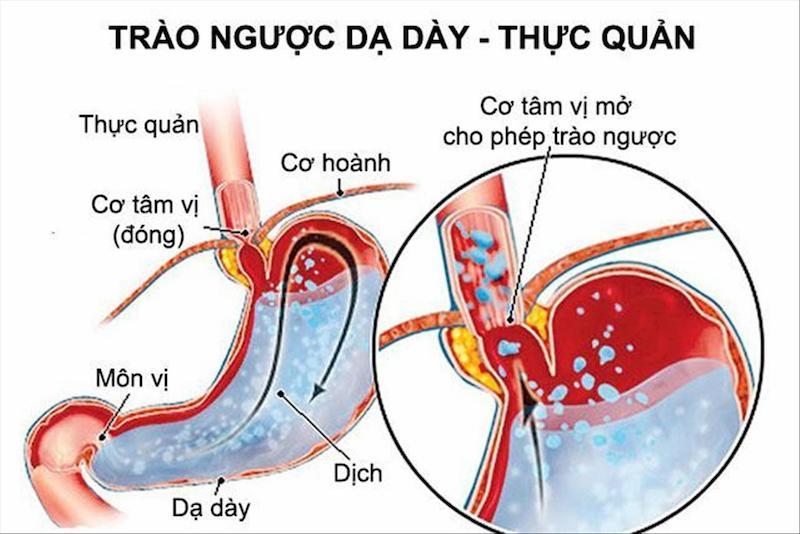 Trào ngược dạ dày là một trong những bệnh về tiêu hóa thường gặp nhất