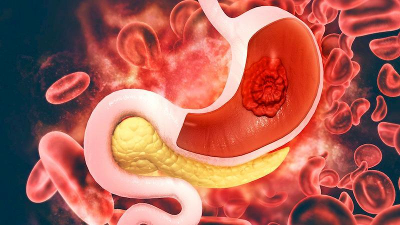Ung thư dạ dày là bệnh phổ biến, thường gặp ở người già và người có thói quen sinh hoạt không lành mạnh