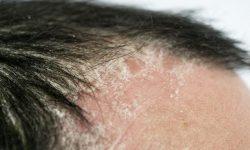 Sự rối loạn miễn dịch là một trong những nguyên nhân gây bệnh hàng đầu