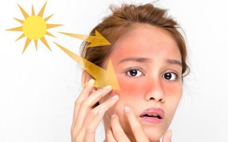 Làn da dưới tác động của ánh nắng sẽ càng dễ kích ứng, tổn thương hơn
