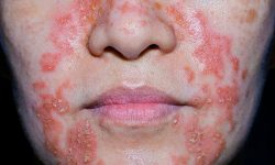 Viêm da cơ địa là gì? Biện pháp chẩn đoán và biện pháp điều trị