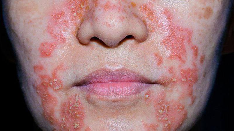 Viêm da cơ địa cấp tính chủ yếu gây ra tổn thương ở mặt