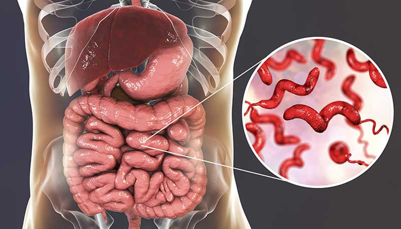 Viêm dạ dày ruột cấp do rất nhiều nguyên nhân khác nhau