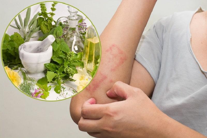 Các bài thuốc Đông y cũng dùng để điều trị bệnh viêm da do dị ứng