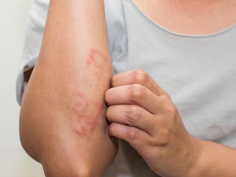 Viêm da do dị ứng ảnh hưởng rất nhiều đến chất lượng cuộc sống