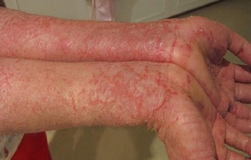 Có rất nhiều nguyên nhân khác nhau gây nên bệnh viêm da dị ứng